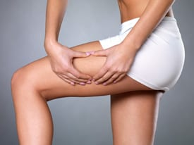 cellulitis voorkomen