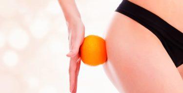 voorkomen cellulitis verhelpen