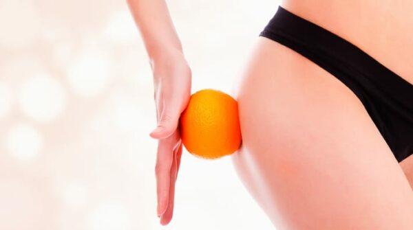 Cellulitis: Wat is het en kun je er echt iets tegen doen?
