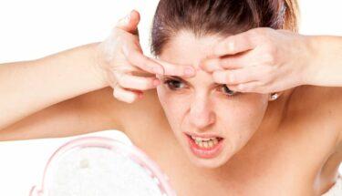 Puistjes & voeding: Acne voorkomen door een goed dieet