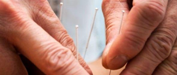 Acupunctuur + afvallen: waarom het wel & niet werkt