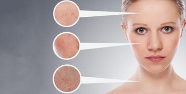 acne behandeling puistjes