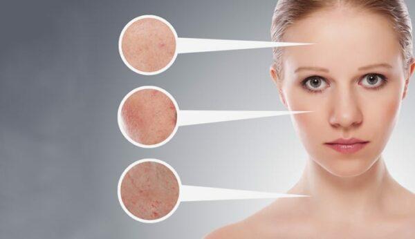 Acne-behandeling: fabels & feiten omtrent puistjes…