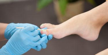 witte-nagels-behandeling