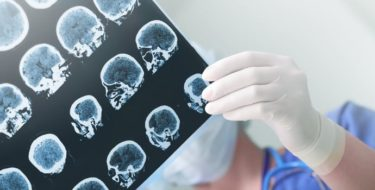 Beroerte, herseninfarct & hersenbloeding herkennen…