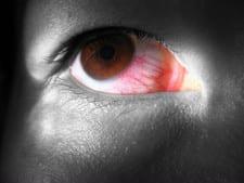 Rode ogen: hoe ontstaat een rood doorlopen oog?
