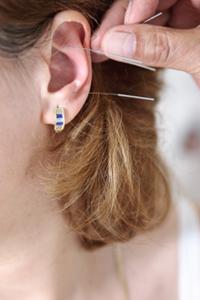 afvallen acupunctuur dieet
