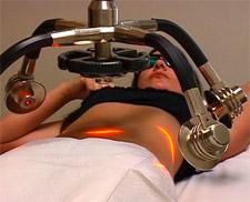 Zerona laser behandeling: Nieuwe manier om vet weg te halen