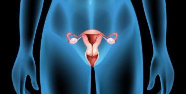 Cyste in baarmoeder of eierstok; al dan niet door endometriose