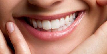 Roze, rood & wit tandvlees – Wat zegt je tandvlees-kleur?