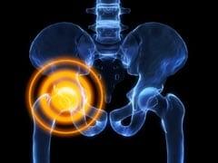 Voeding & botontkalking: 6 voedingstips tegen osteoporose!