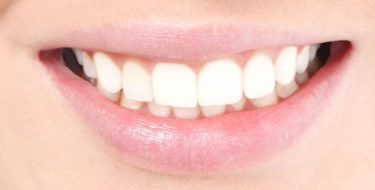 Pijn tandvlees – Hoe behandel je pijnlijk tandvlees?