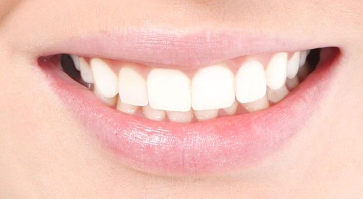 schimmelinfectie tandvlees