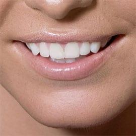 Kapotte lippen voorkomen & behandelen – 6 tips