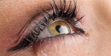 Oogoedeem: vochtophoping in ogen & oogleden