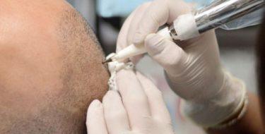 Tricopigmentatie tegen haarverlies & kaalheid bij mannen