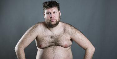 gynaecomastie mannelijke borstvorming