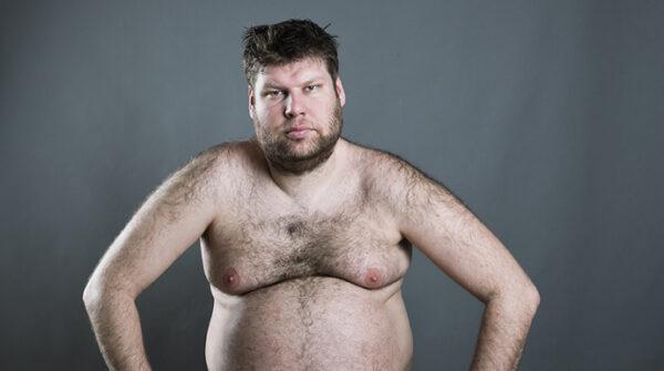 Gynaecomastie: oorzaken & behandeling bij mannelijke borstvorming